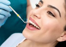 Dental Bonding Services In Lakewood